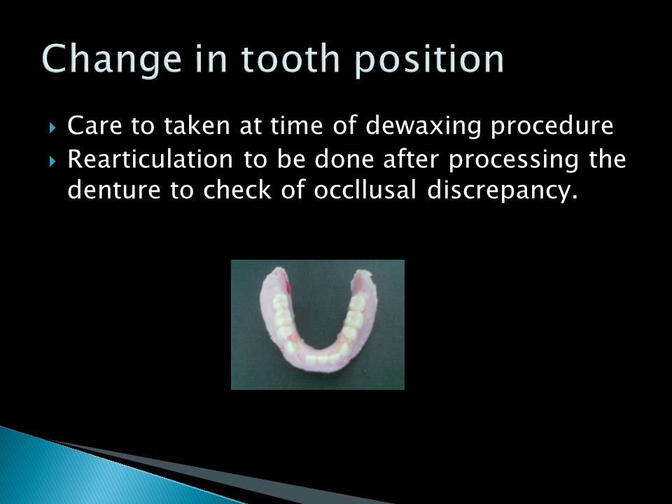 Change in tooth position