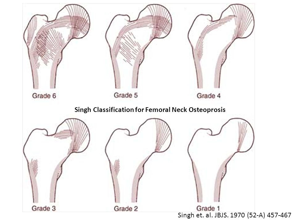 Singh Classification for Femoral Neck Osteoprosis