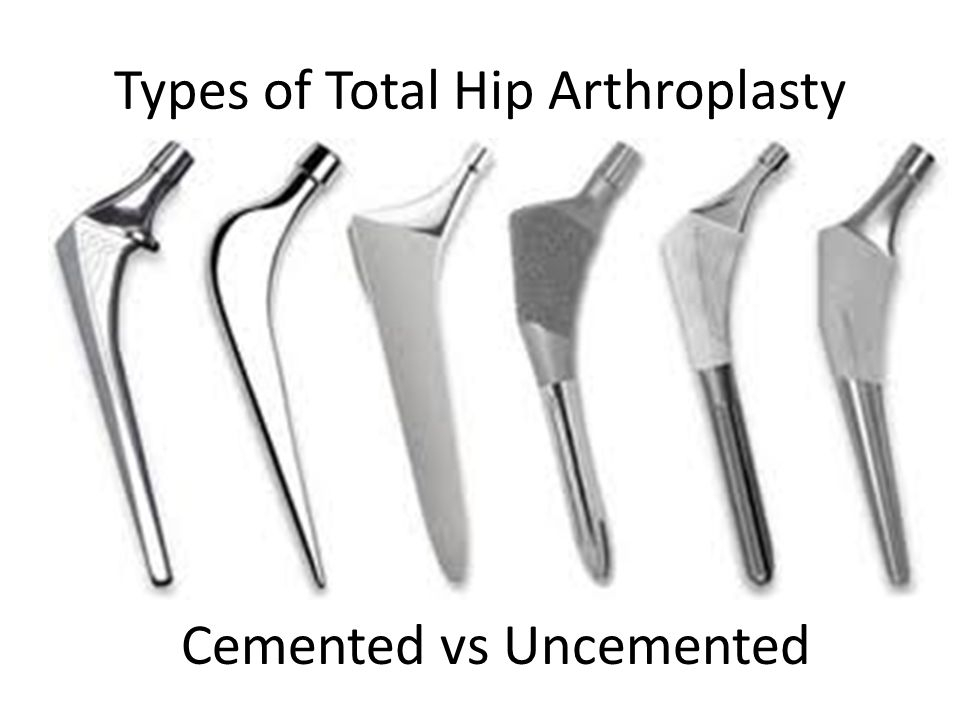 Types of Total Hip Arthroplasty