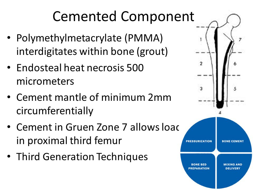 Cemented Components Polymethylmetacrylate (PMMA) interdigitates within bone (grout) Endosteal heat necrosis 500 micrometers.