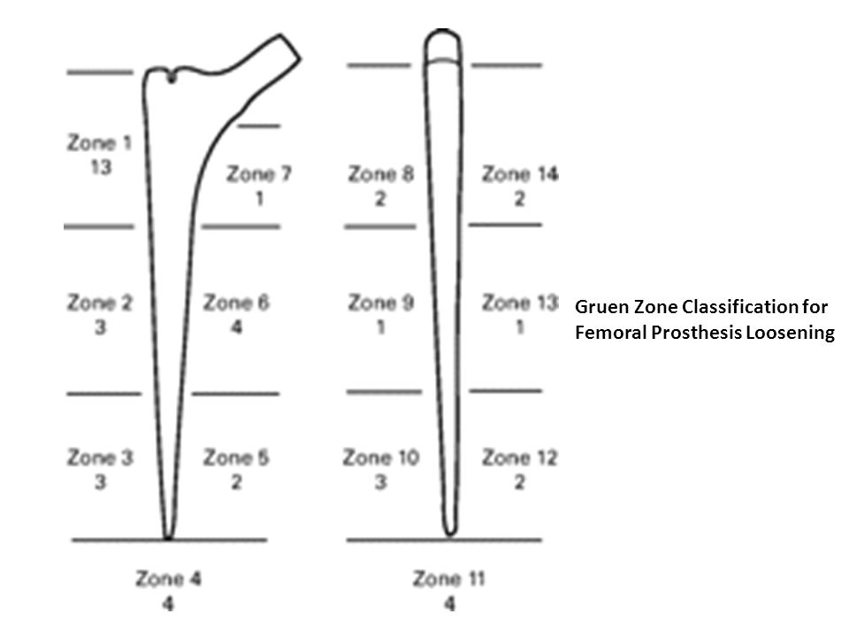 Gruen Zone Classification for Femoral Prosthesis Loosening