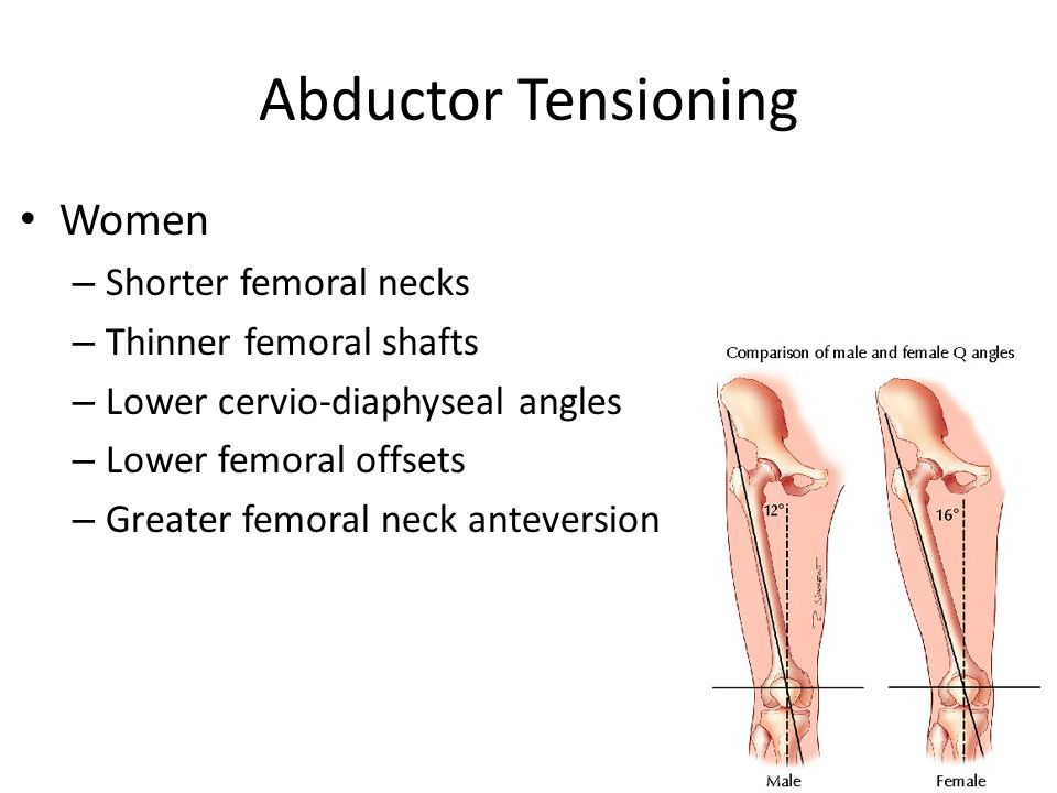 Abductor Tensioning Women Shorter femoral necks Thinner femoral shafts