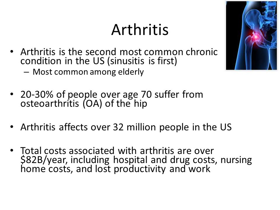 Arthritis Arthritis is the second most common chronic condition in the US (sinusitis is first) Most common among elderly.