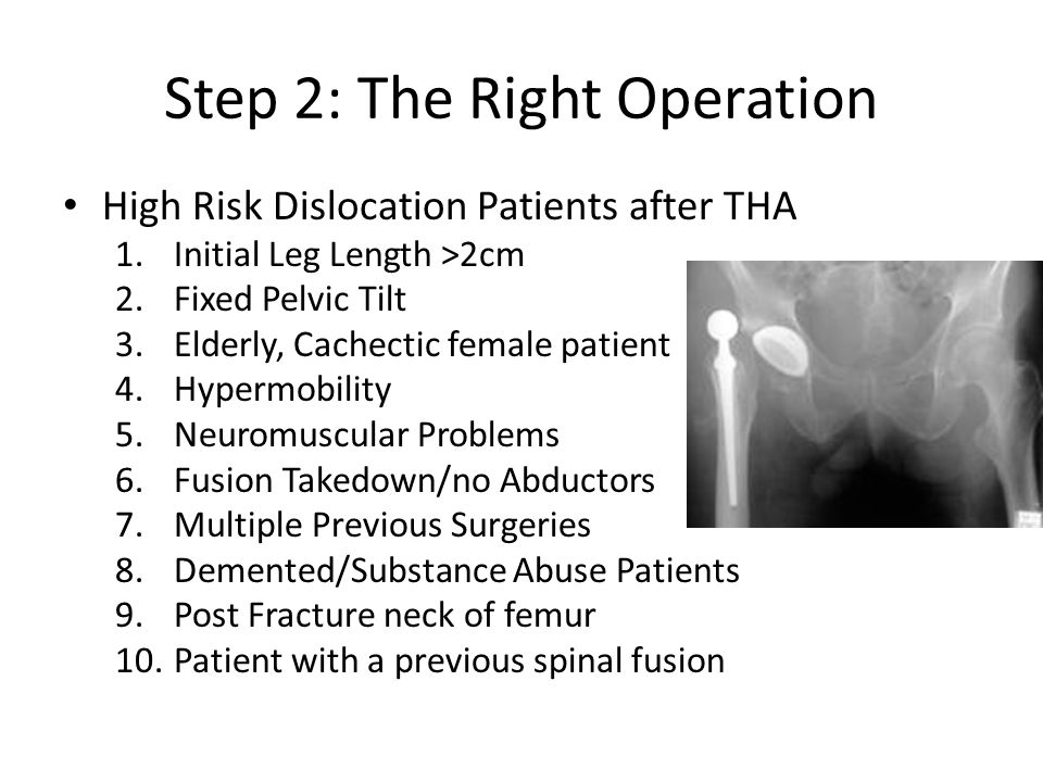 Step 2: The Right Operation