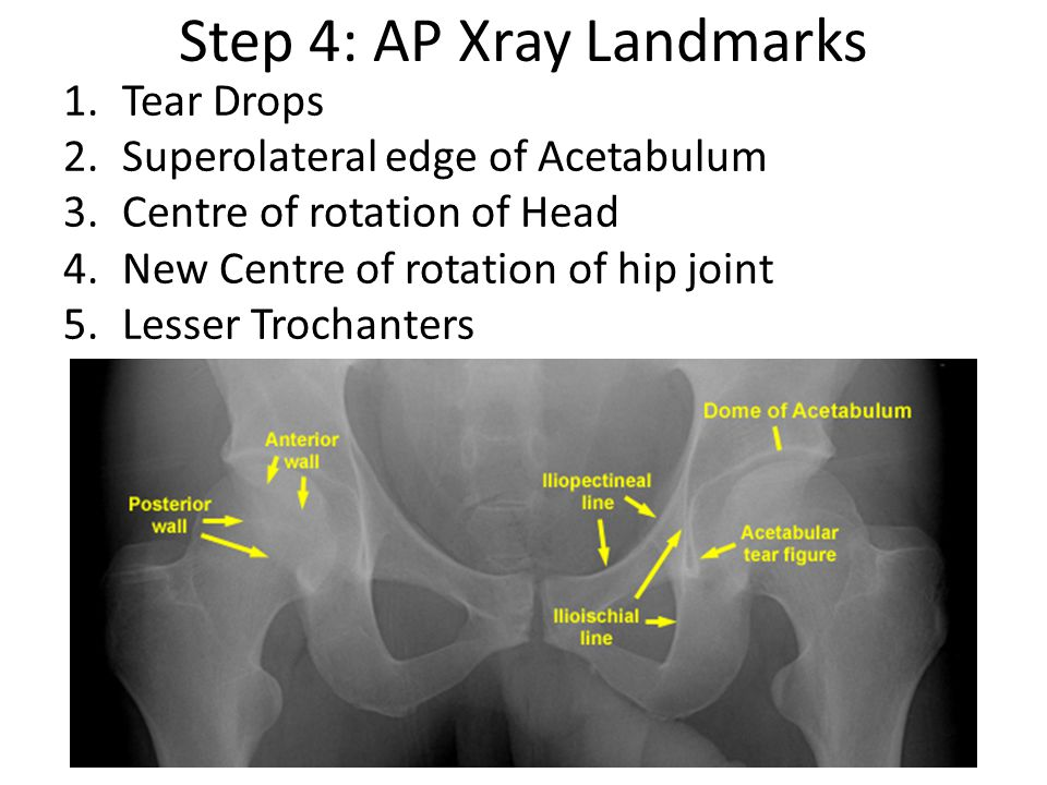 Step 4: AP Xray Landmarks