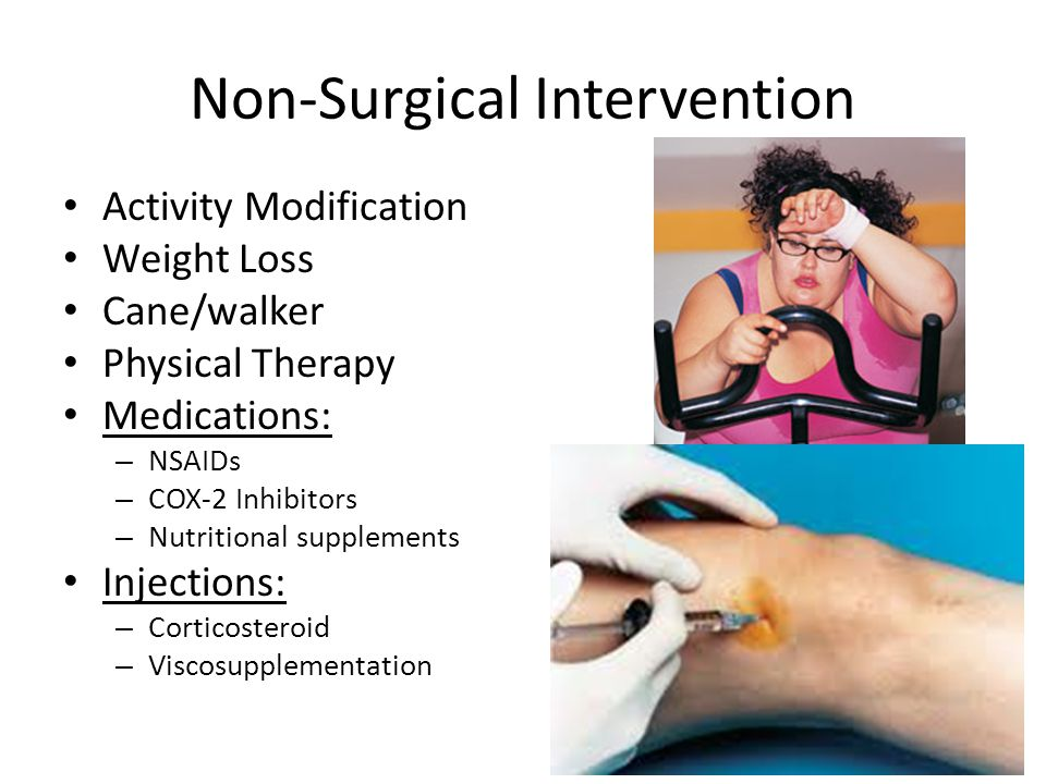 Non-Surgical Intervention