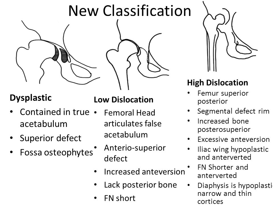 New Classification Dysplastic Contained in true acetabulum
