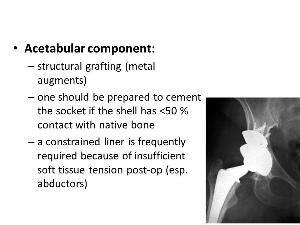 Acetabular component: