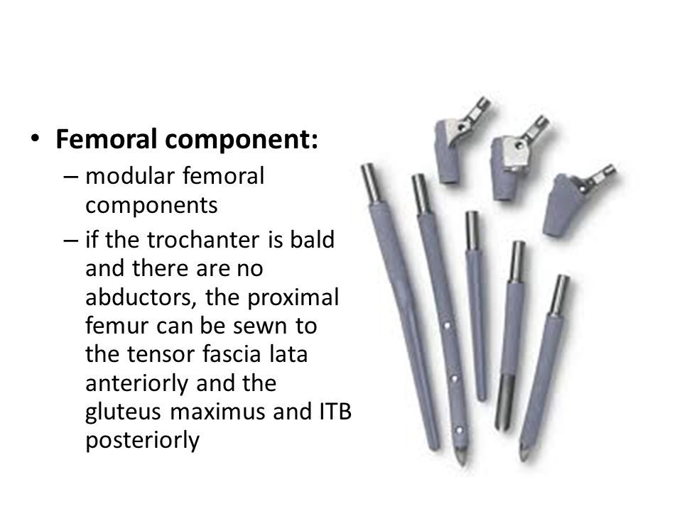 Femoral component: modular femoral components