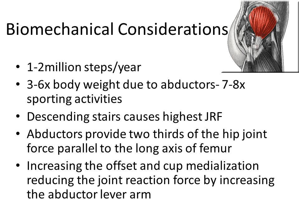 Biomechanical Considerations