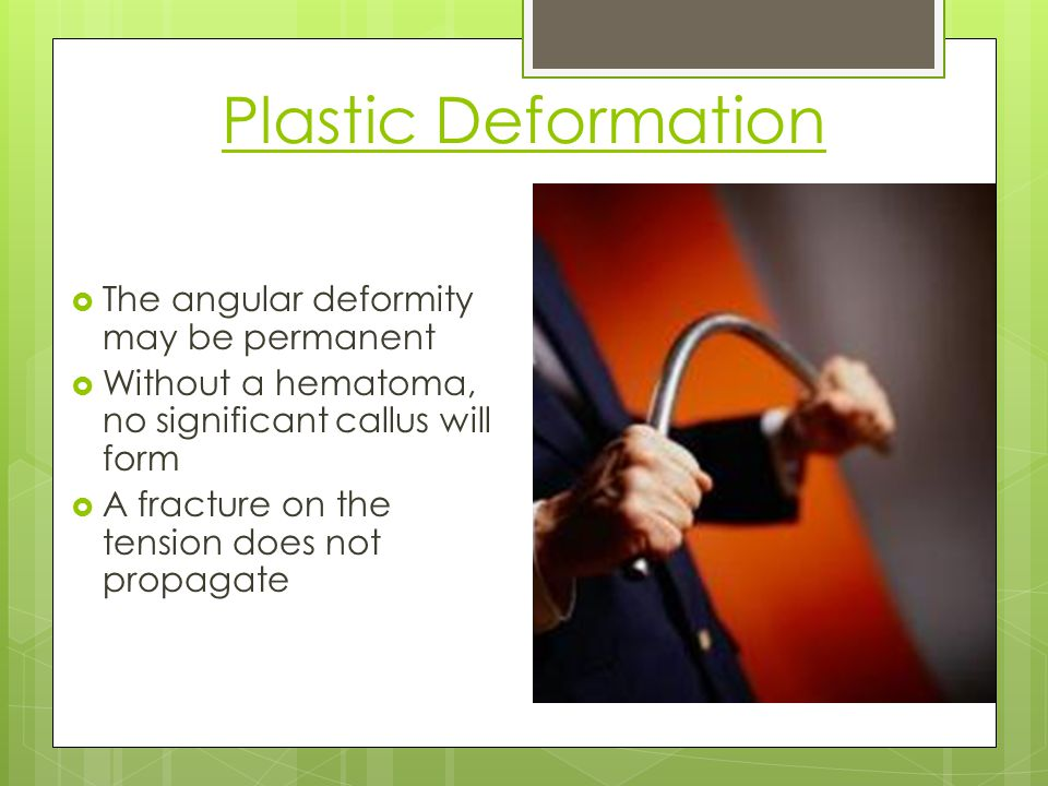 Plastic Deformation The angular deformity may be permanent