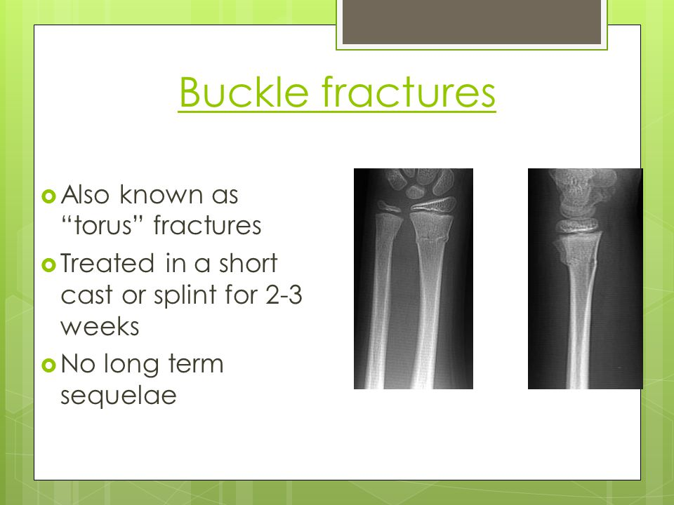Buckle fractures Also known as torus fractures