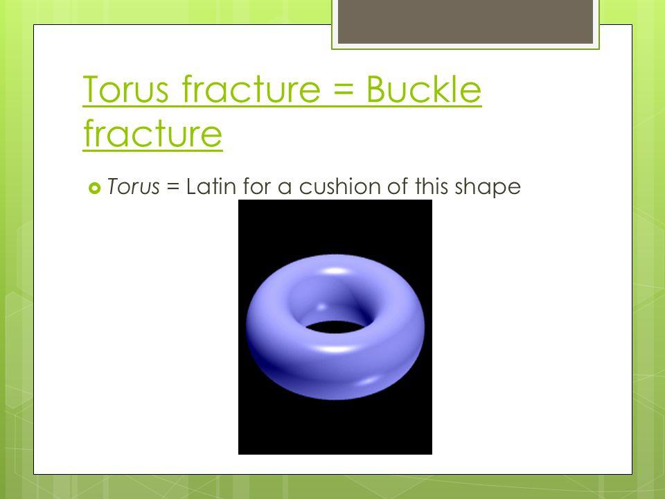 Torus fracture = Buckle fracture