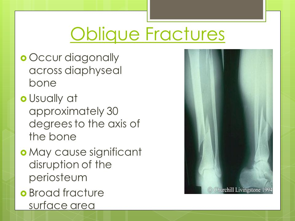 Oblique Fractures Occur diagonally across diaphyseal bone