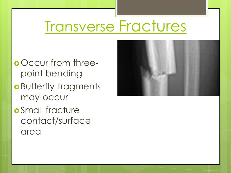 Transverse Fractures Occur from three-point bending