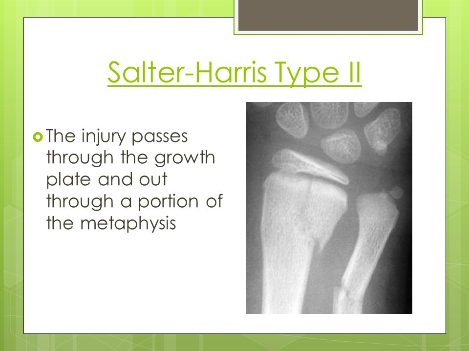 Salter-Harris Type II The injury passes through the growth plate and out through a portion of the metaphysis.