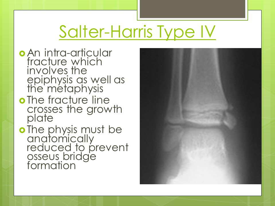 Salter-Harris Type IV An intra-articular fracture which involves the epiphysis as well as the metaphysis.