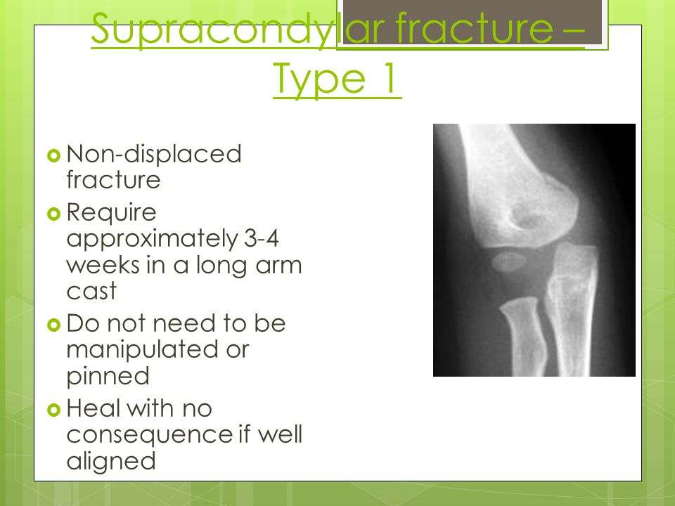 Supracondylar fracture – Type 1