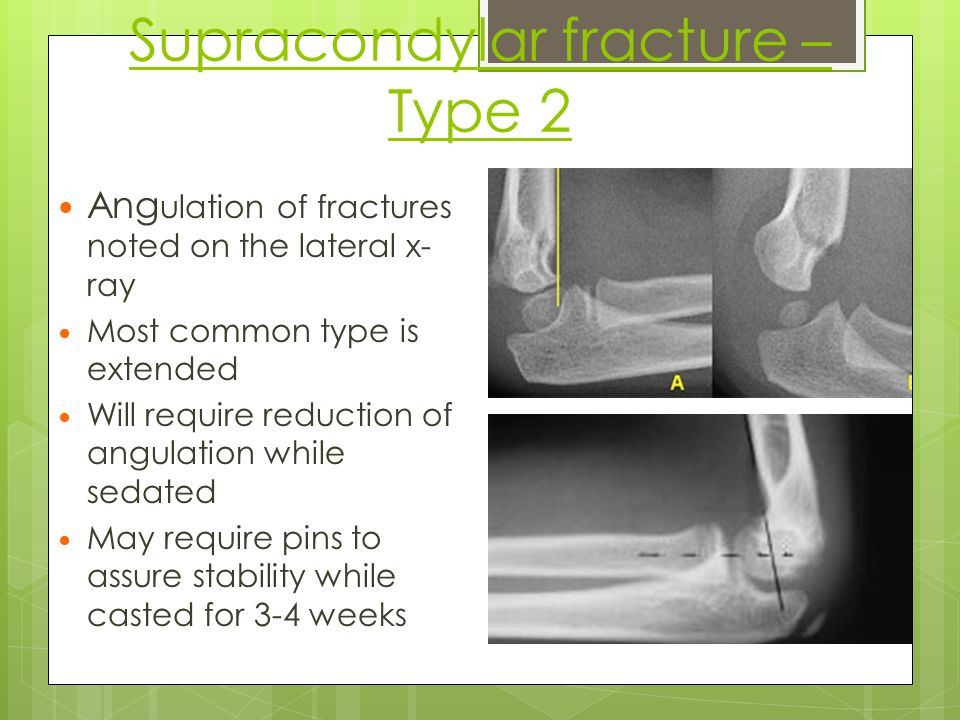 Supracondylar fracture – Type 2