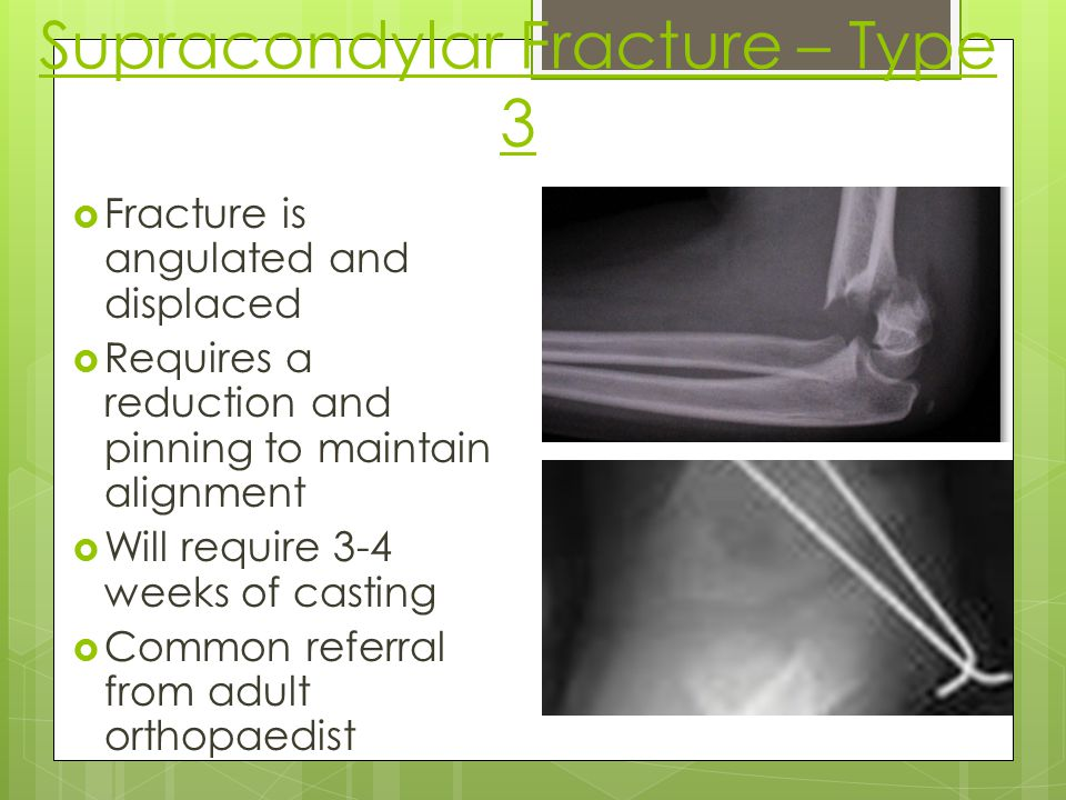 Supracondylar Fracture – Type 3