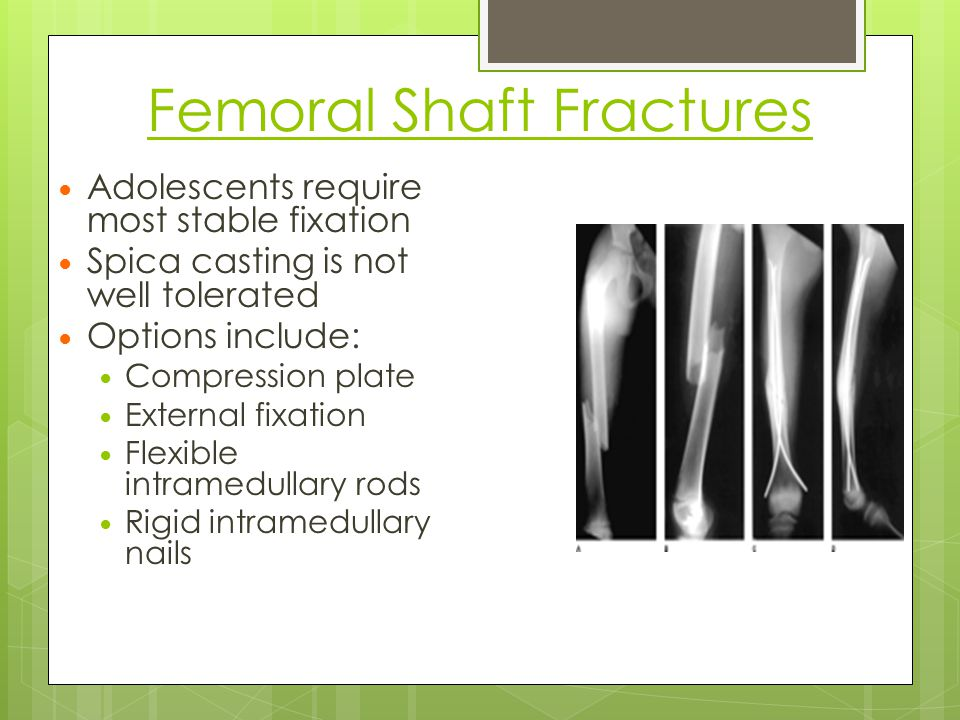 Femoral Shaft Fractures
