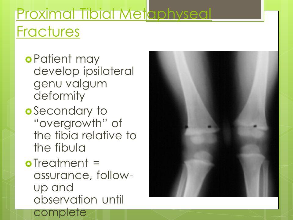 Proximal Tibial Metaphyseal Fractures