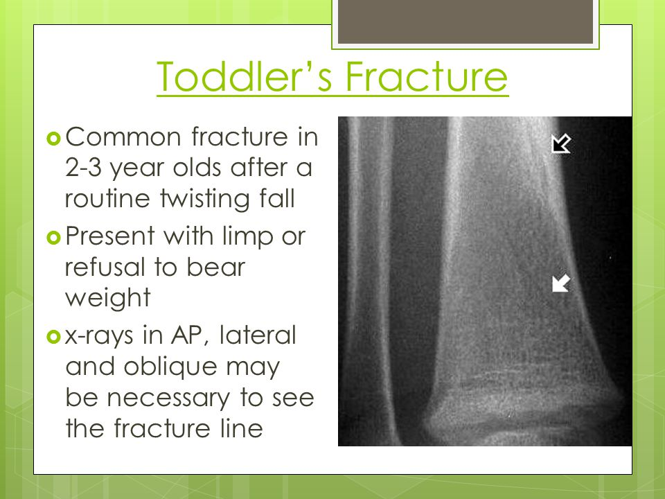 Toddler's Fracture Common fracture in 2-3 year olds after a routine twisting fall. Present with limp or refusal to bear weight.