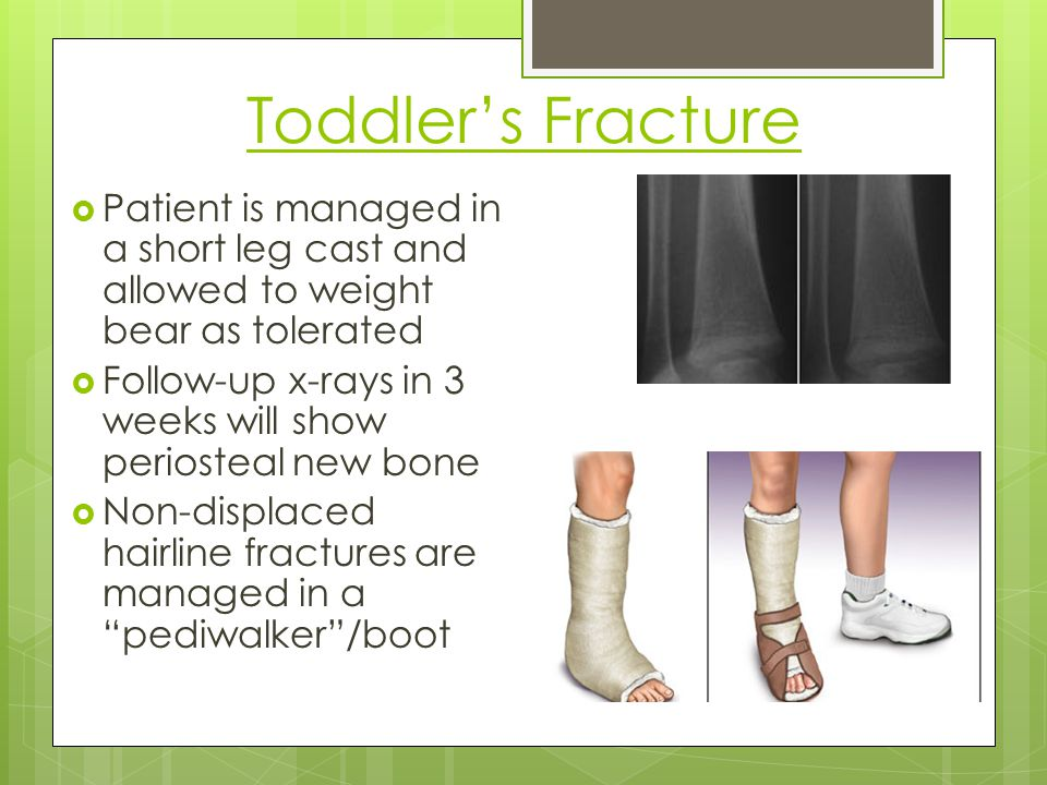 Toddler's Fracture Patient is managed in a short leg cast and allowed to weight bear as tolerated.