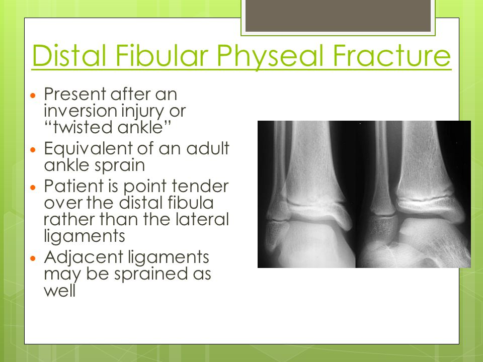 Distal Fibular Physeal Fracture