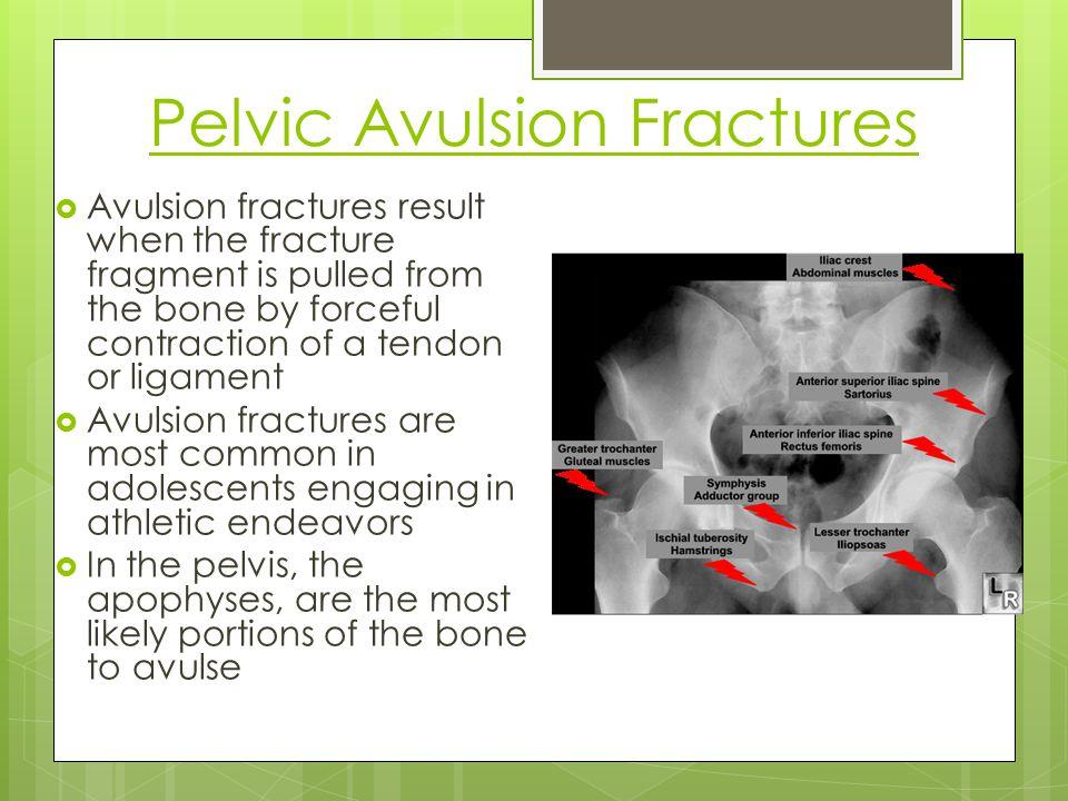 Pelvic Avulsion Fractures