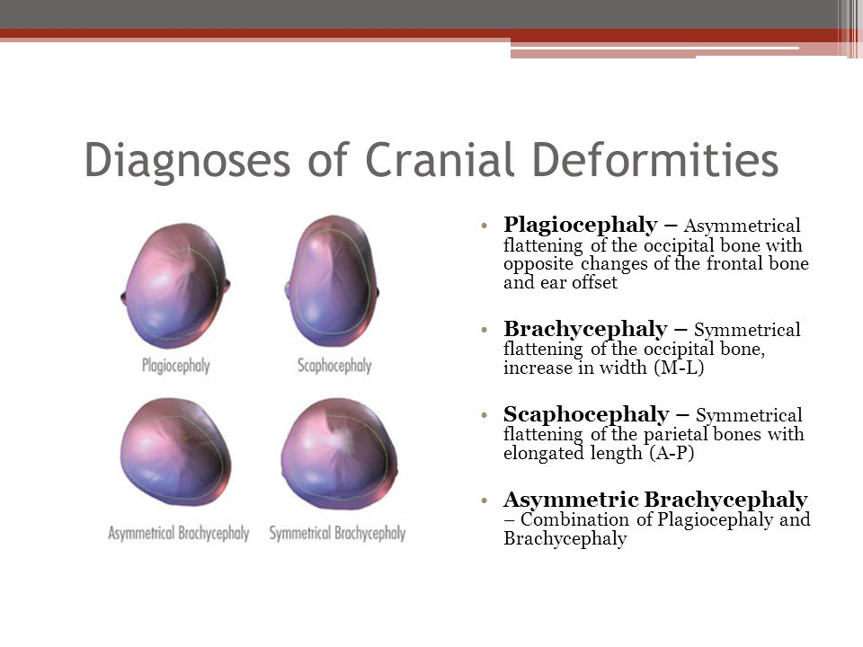 Diagnoses of Cranial Deformities