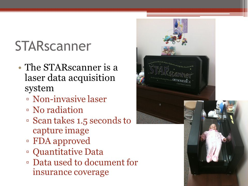 STARscanner The STARscanner is a laser data acquisition system