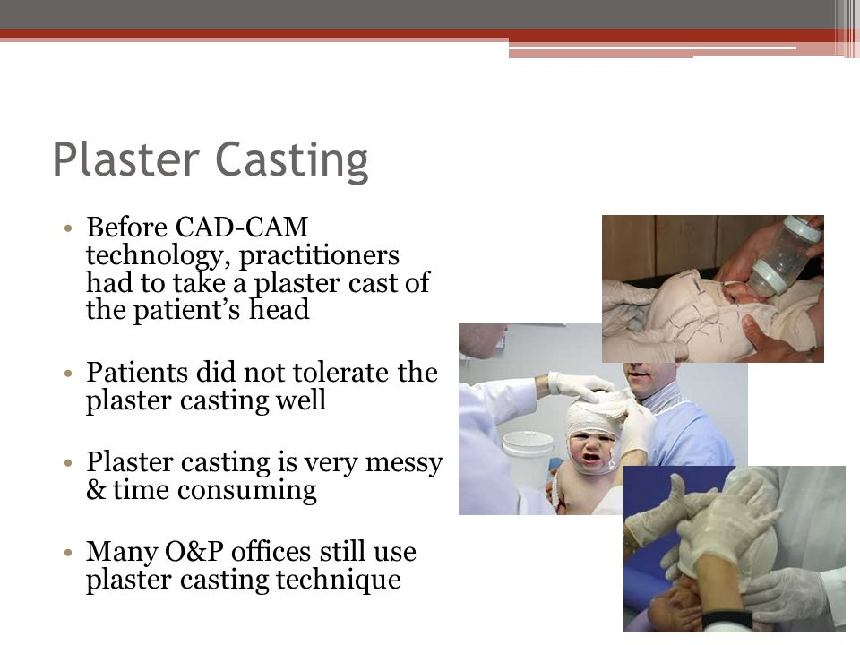 Plaster Casting Before CAD-CAM technology, practitioners had to take a plaster cast of the patient's head.