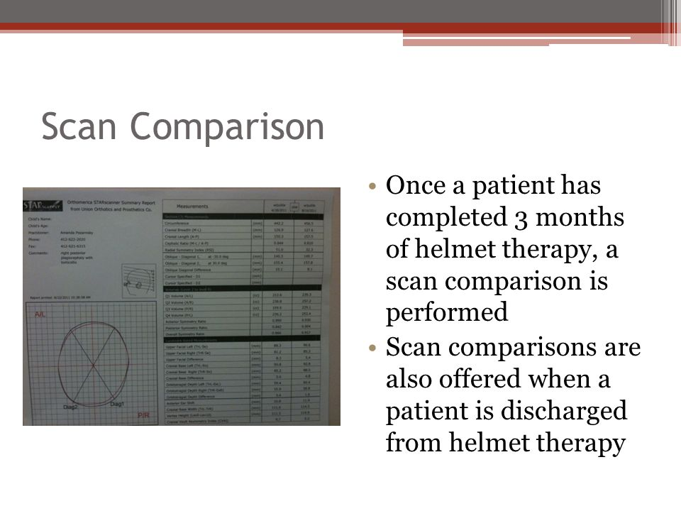Scan Comparison Once a patient has completed 3 months of helmet therapy, a scan comparison is performed.
