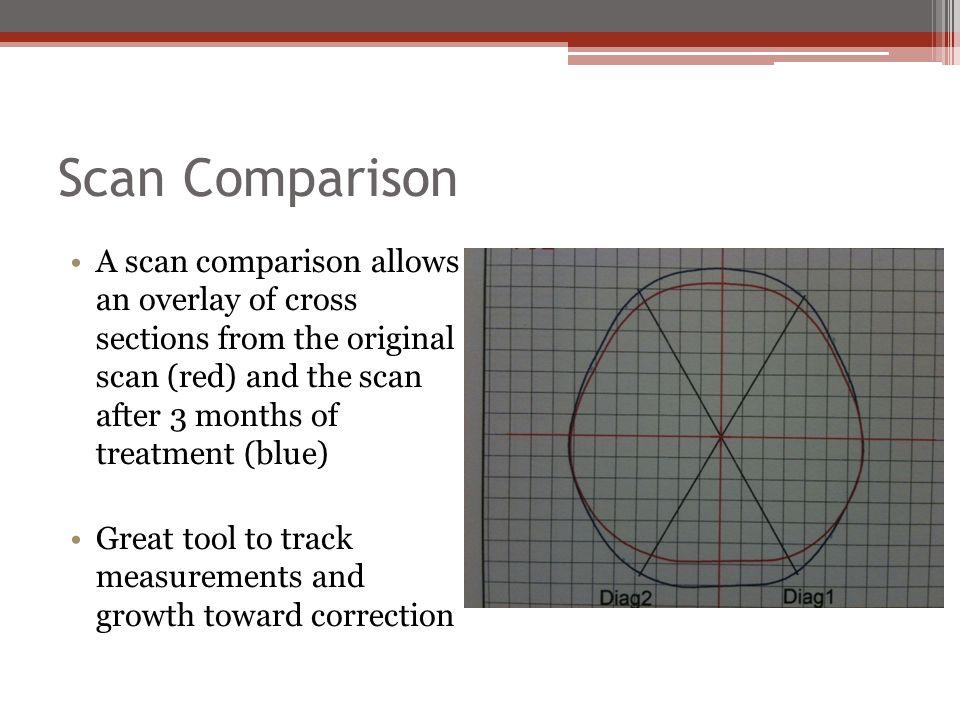 Scan Comparison