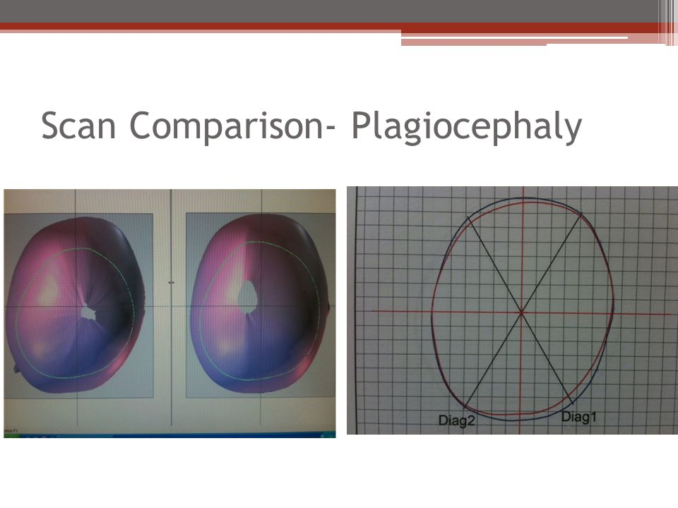 Scan Comparison- Plagiocephaly