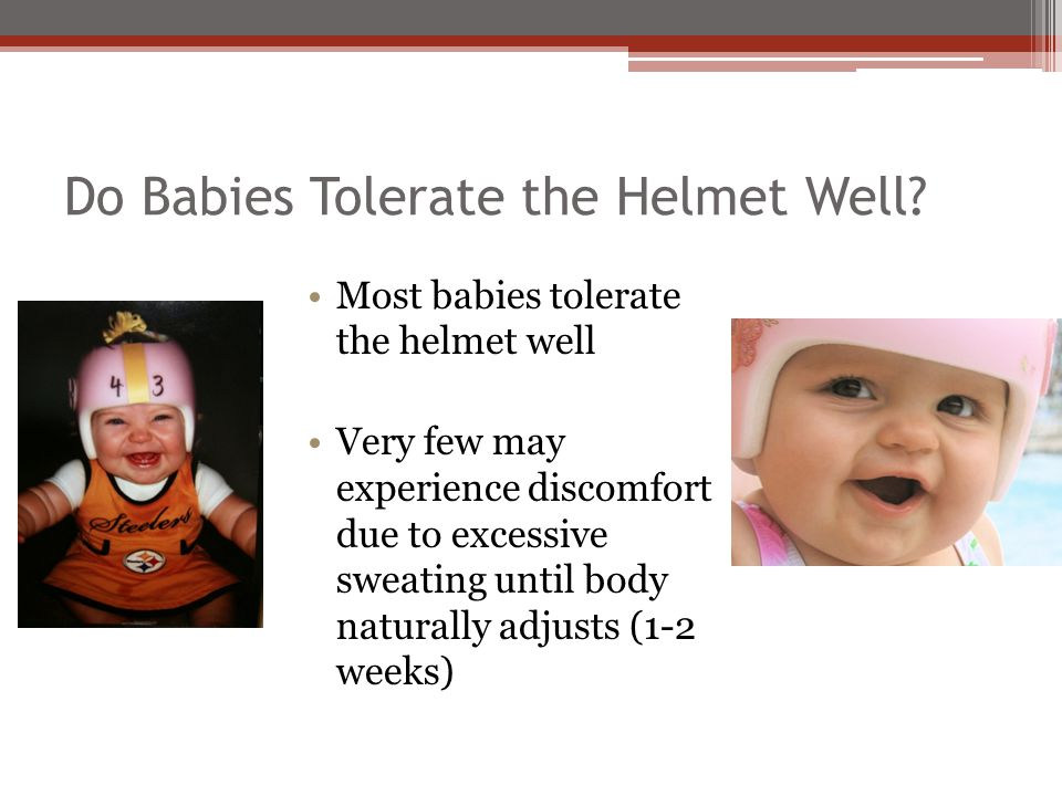 Do Babies Tolerate the Helmet Well