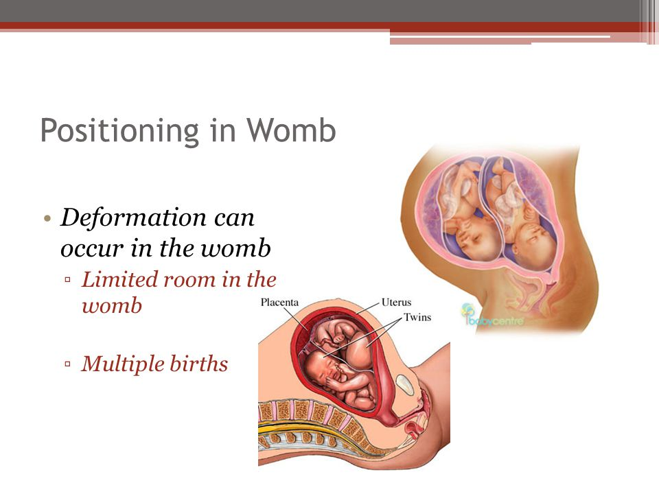 Positioning in Womb Deformation can occur in the womb