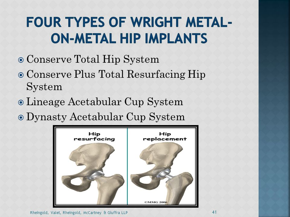 Four Types of Wright Metal-on-Metal Hip Implants