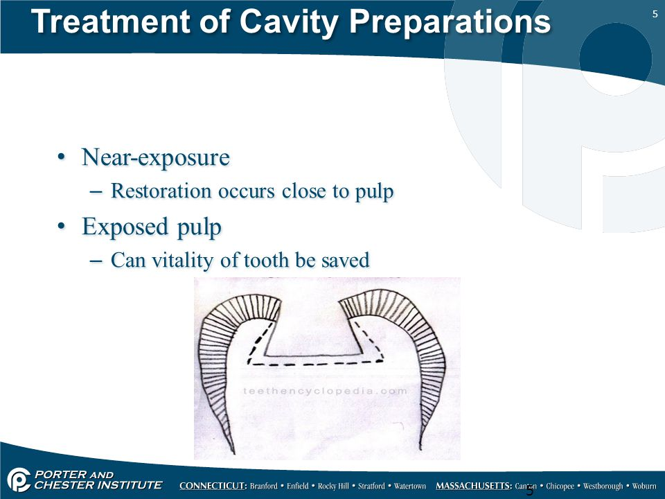Treatment of Cavity Preparations