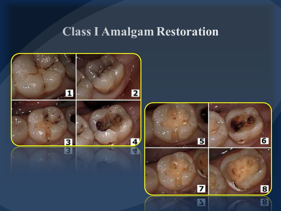 Class I Amalgam Restoration