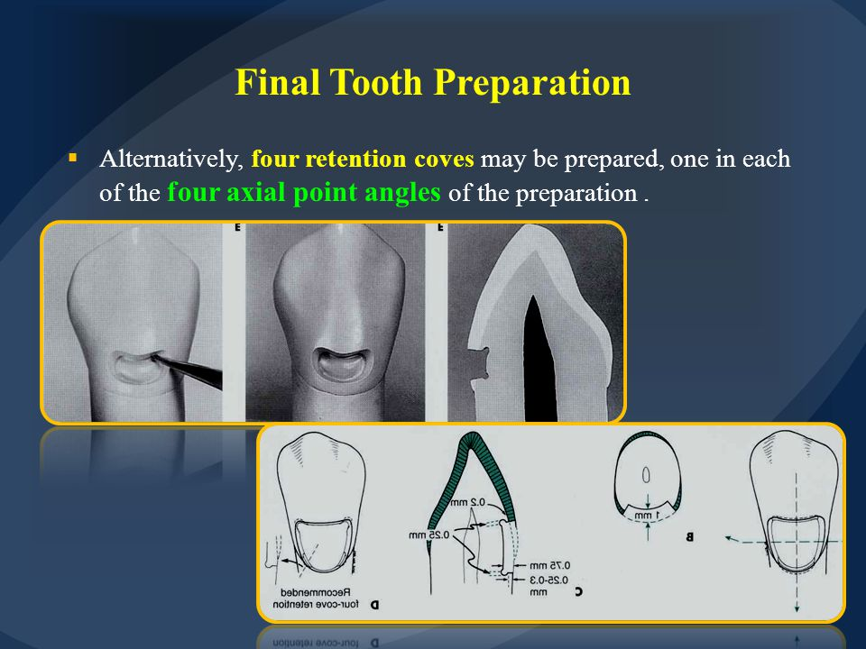 Final Tooth Preparation