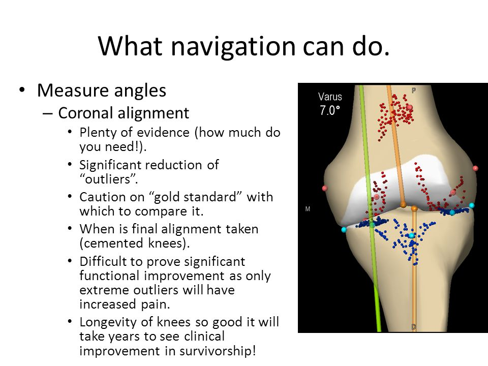 What navigation can do. Measure angles Coronal alignment