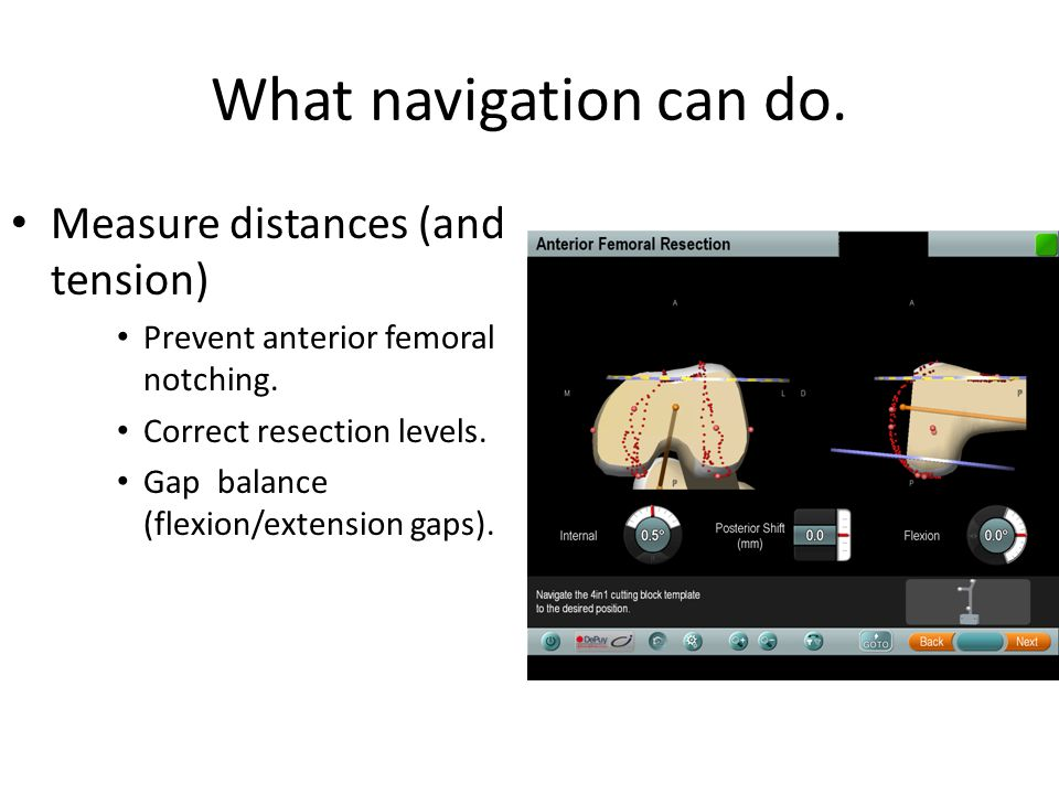 What navigation can do. Measure distances (and tension)