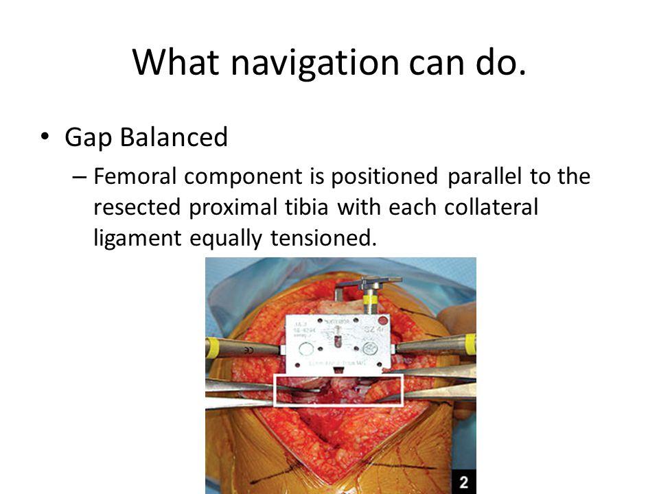 What navigation can do. Gap Balanced