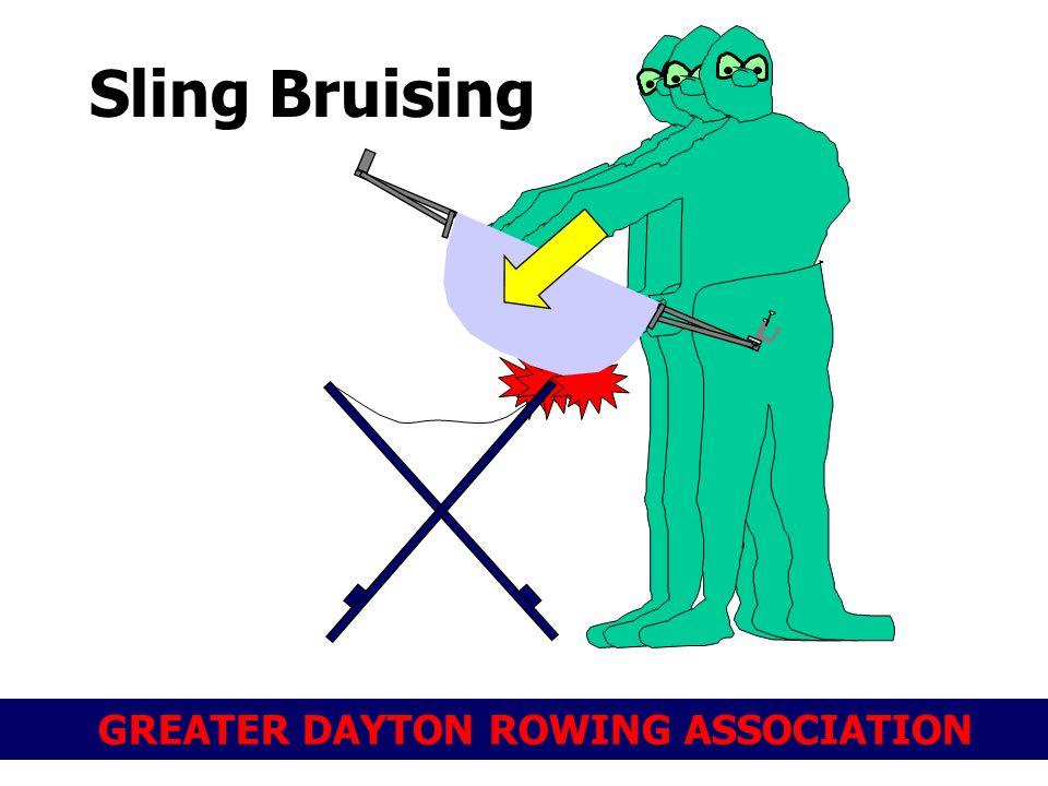 Sling Bruising 30