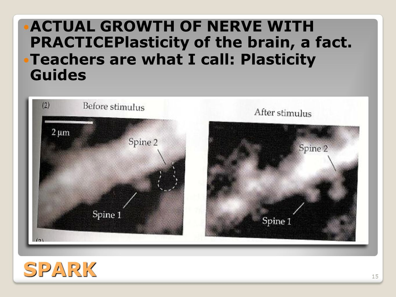 ACTUAL GROWTH OF NERVE WITH PRACTICEPlasticity of the brain, a fact.