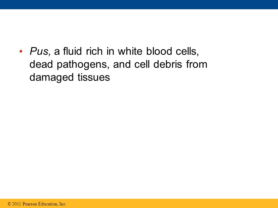 Pus, a fluid rich in white blood cells, dead pathogens, and cell debris from damaged tissues