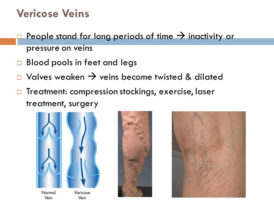 Vericose Veins People stand for long periods of time  inactivity or pressure on veins. Blood pools in feet and legs.