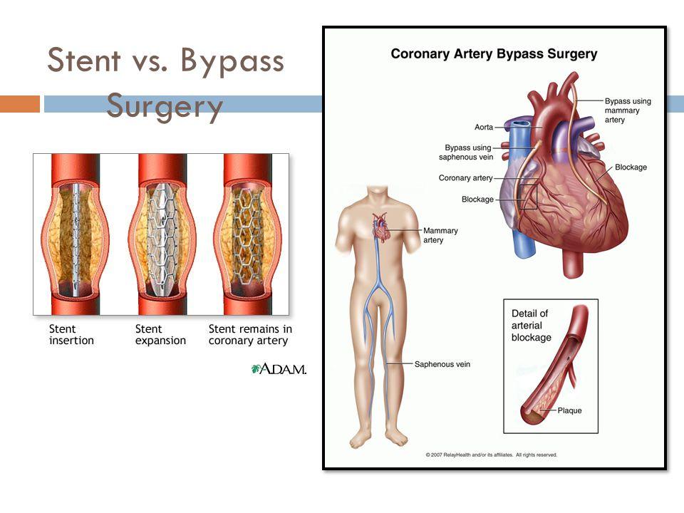 Stent vs. Bypass Surgery